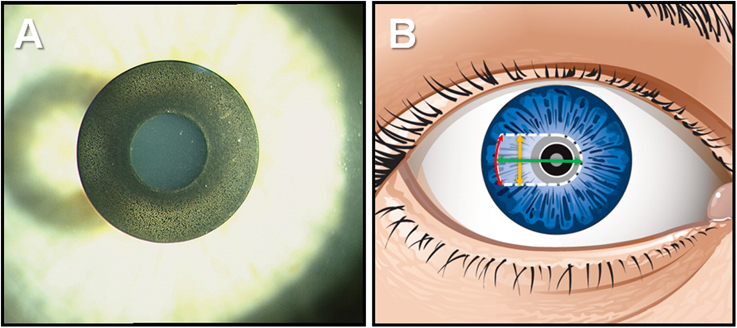 One-year visual outcomes and patient satisfaction after surgical ...