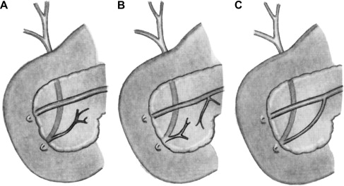Diagnosis and Management of Sphincter of Oddi Dysfunction and ...