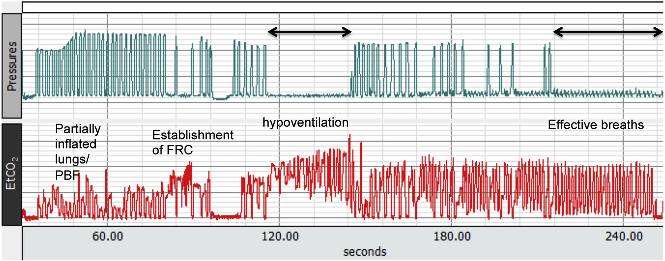 Quantitative end tidal carbon dioxide monitoring in the delivery hi res nvjuhfo Image collections