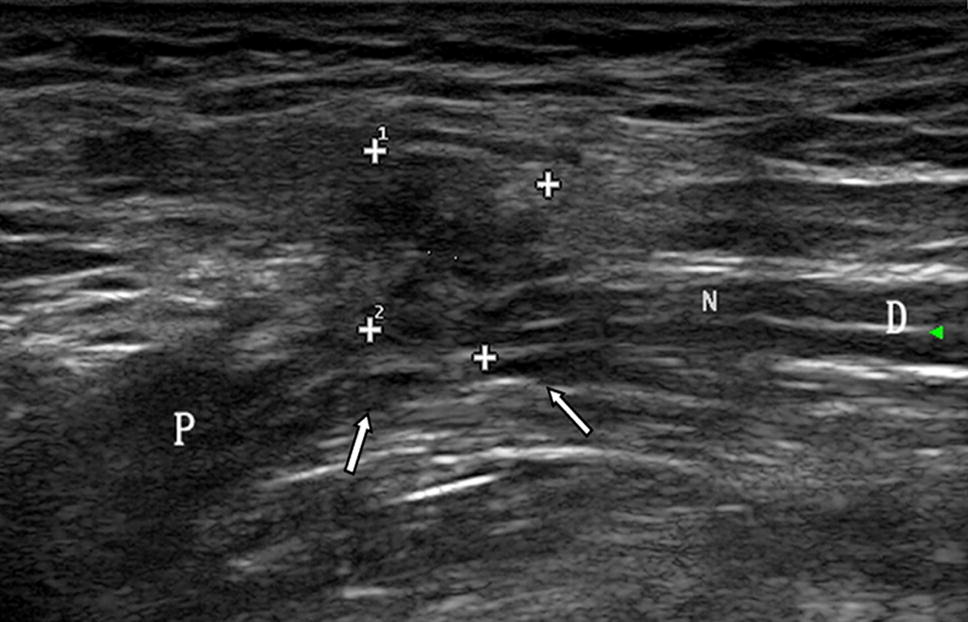 ultrasound in diagnosis of retroperitoneal femoral nerve injury: a, Muscles