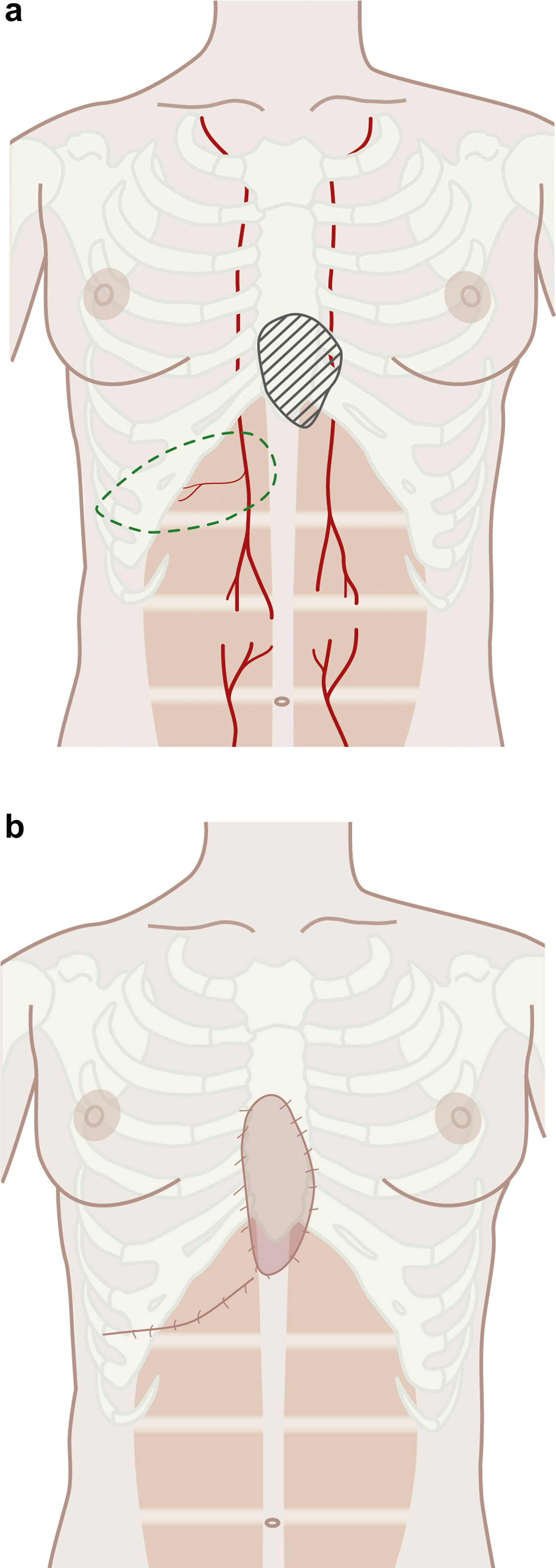 Perforasomes of the upper abdomen: An anatomical study - Journal of ...