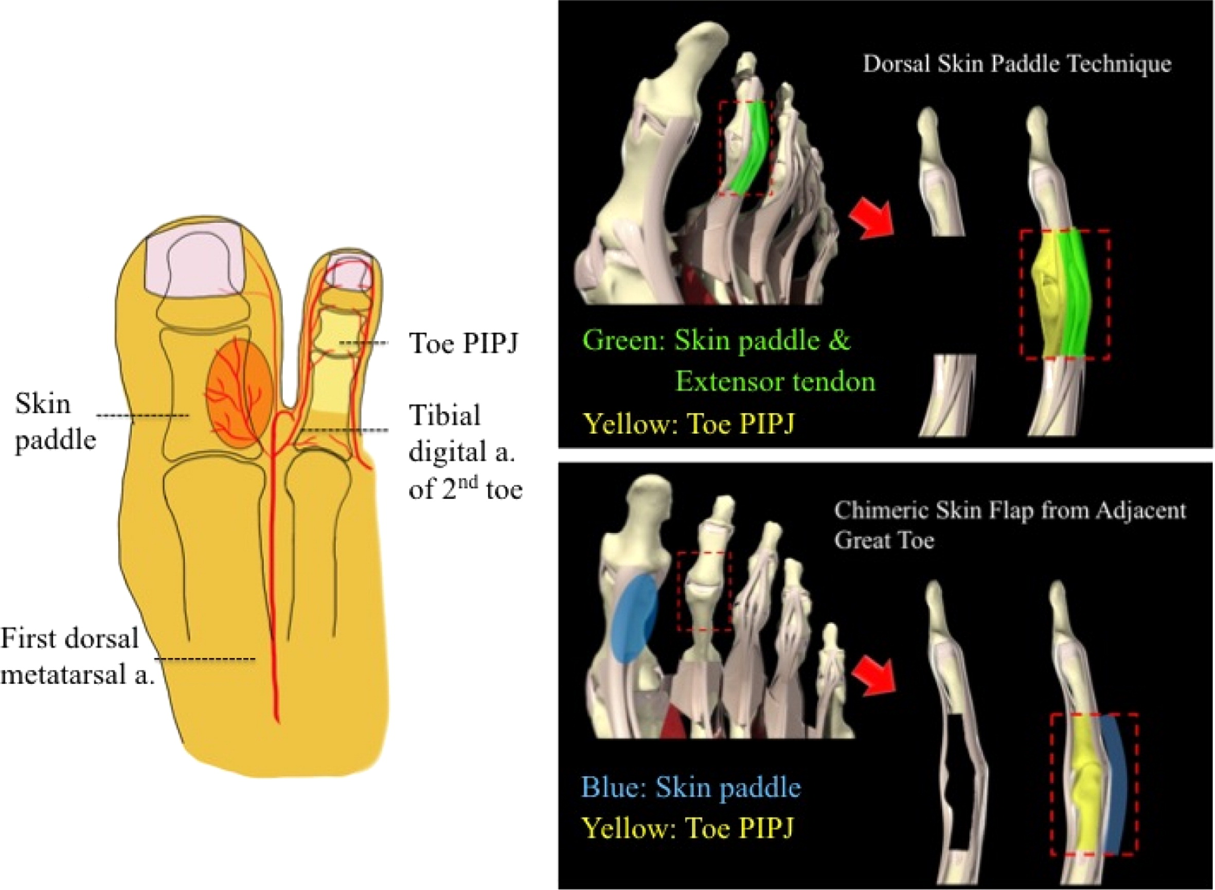 Vascularised toe proximal interphalangeal joint transfer in ...