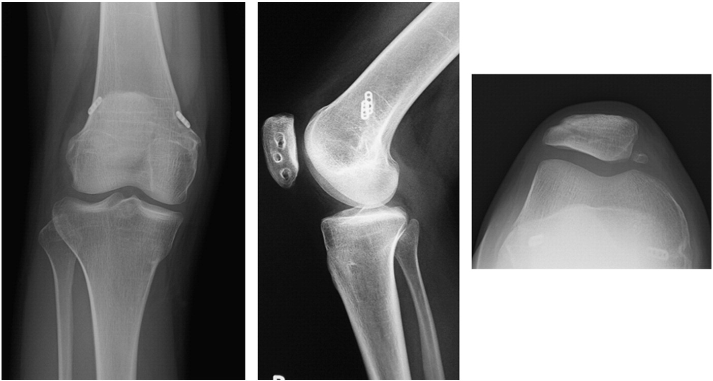 Magnificent Medial Retinaculum Knee Inspiration - Physiology Of ...