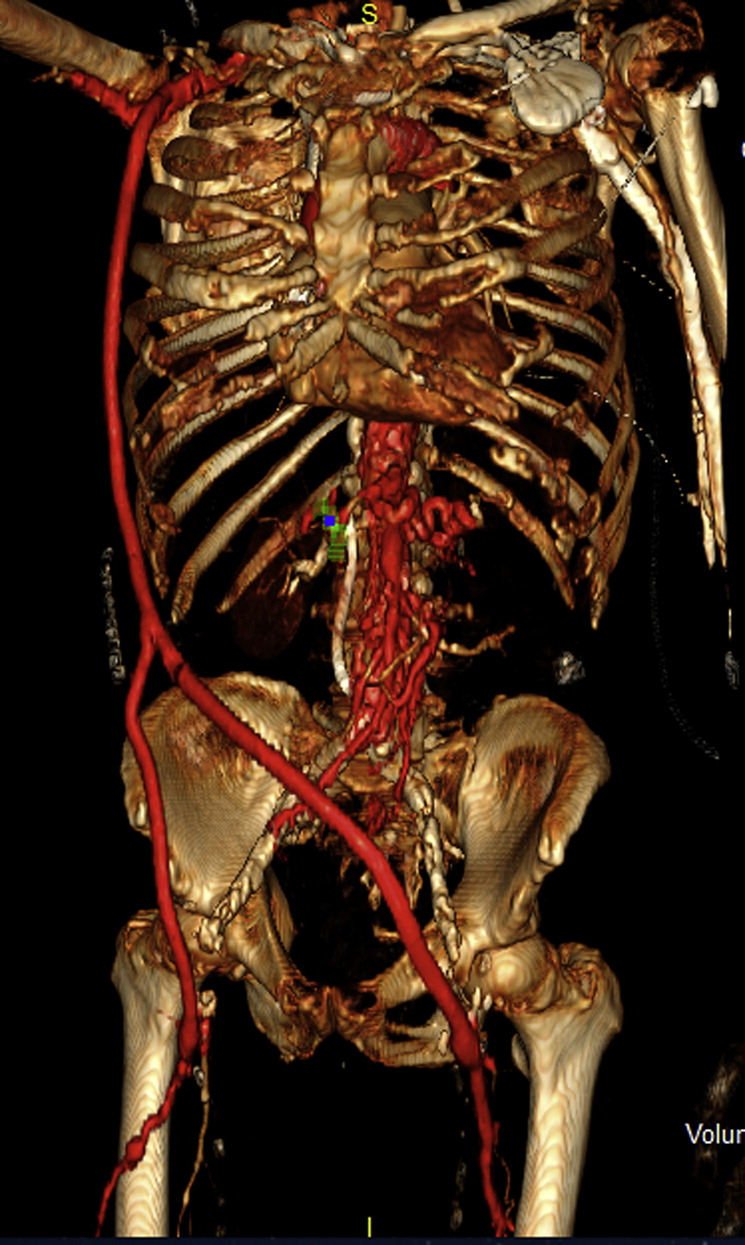 Endovascular Aortoiliac Reconstruction To Allow Excision Of An