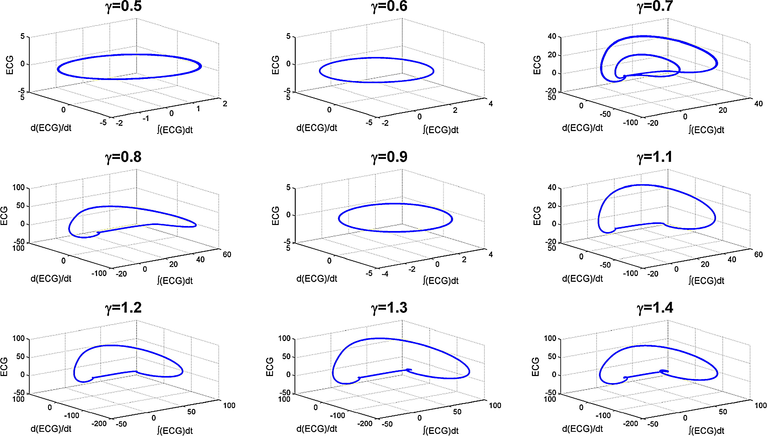Fractional dynamical model for the generation of ecg like signals hi res sciox Choice Image