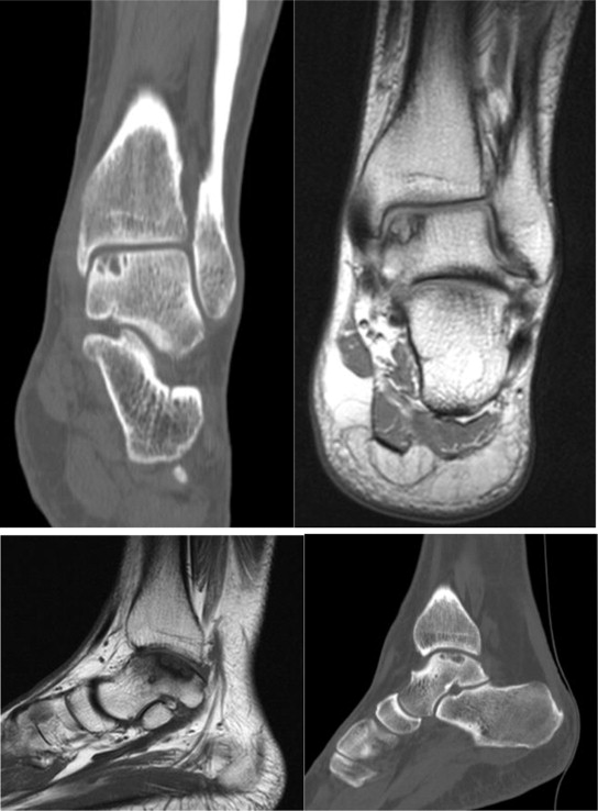 Validating a New Computed Tomography Atlas for Grading Ankle ...