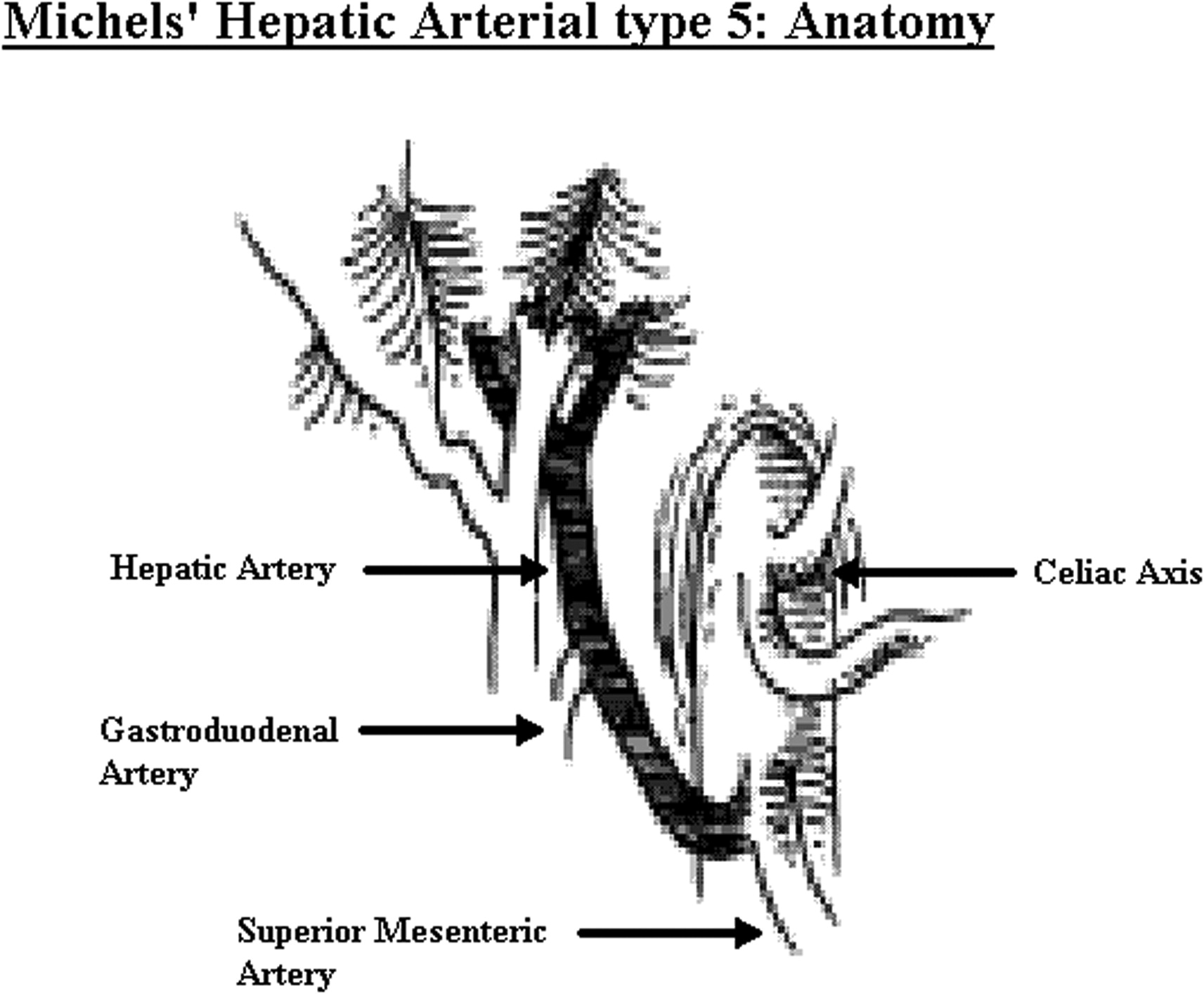 Pancreaticoduodenectomy in the presence of a common hepatic artery ...