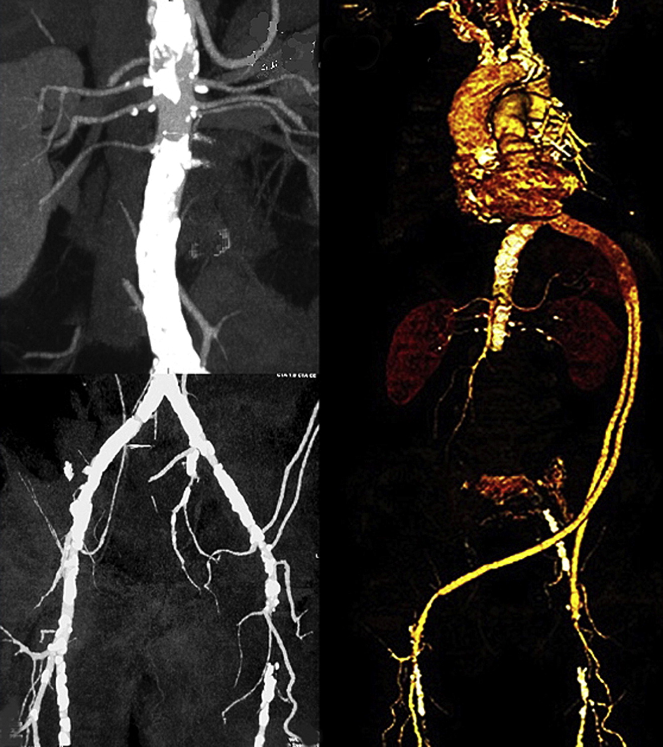 Lower Limbs Revascularization From Supraceliac And Thoracic Aorta