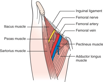 Radial And Femoral Artery Catheterization Techniques Atlas Of The