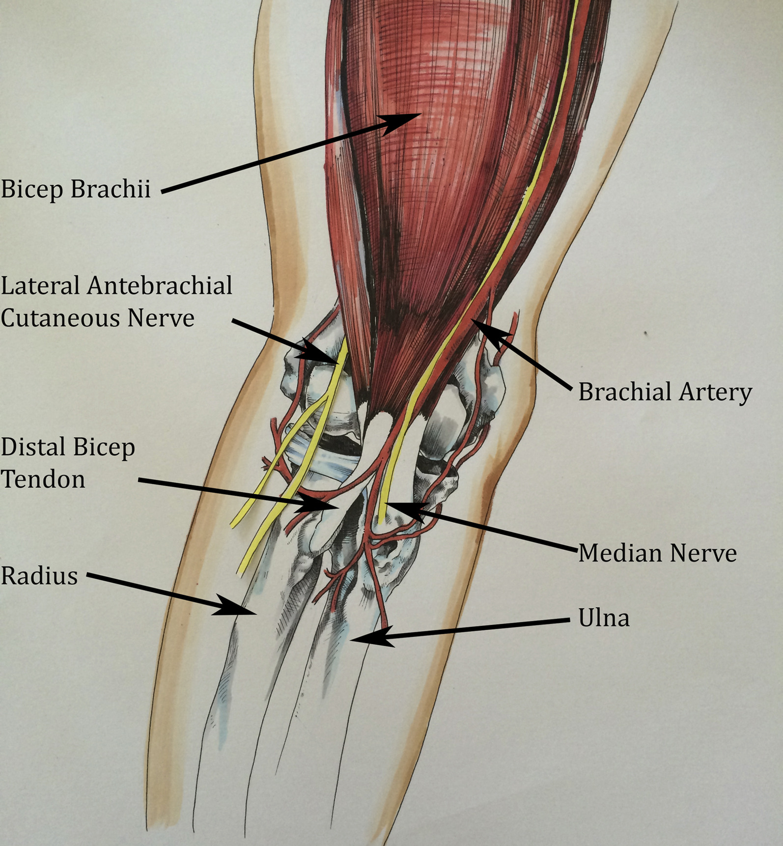 Ultrasound-Guided Distal Bicep Tendon Injection Using a Posterior ...