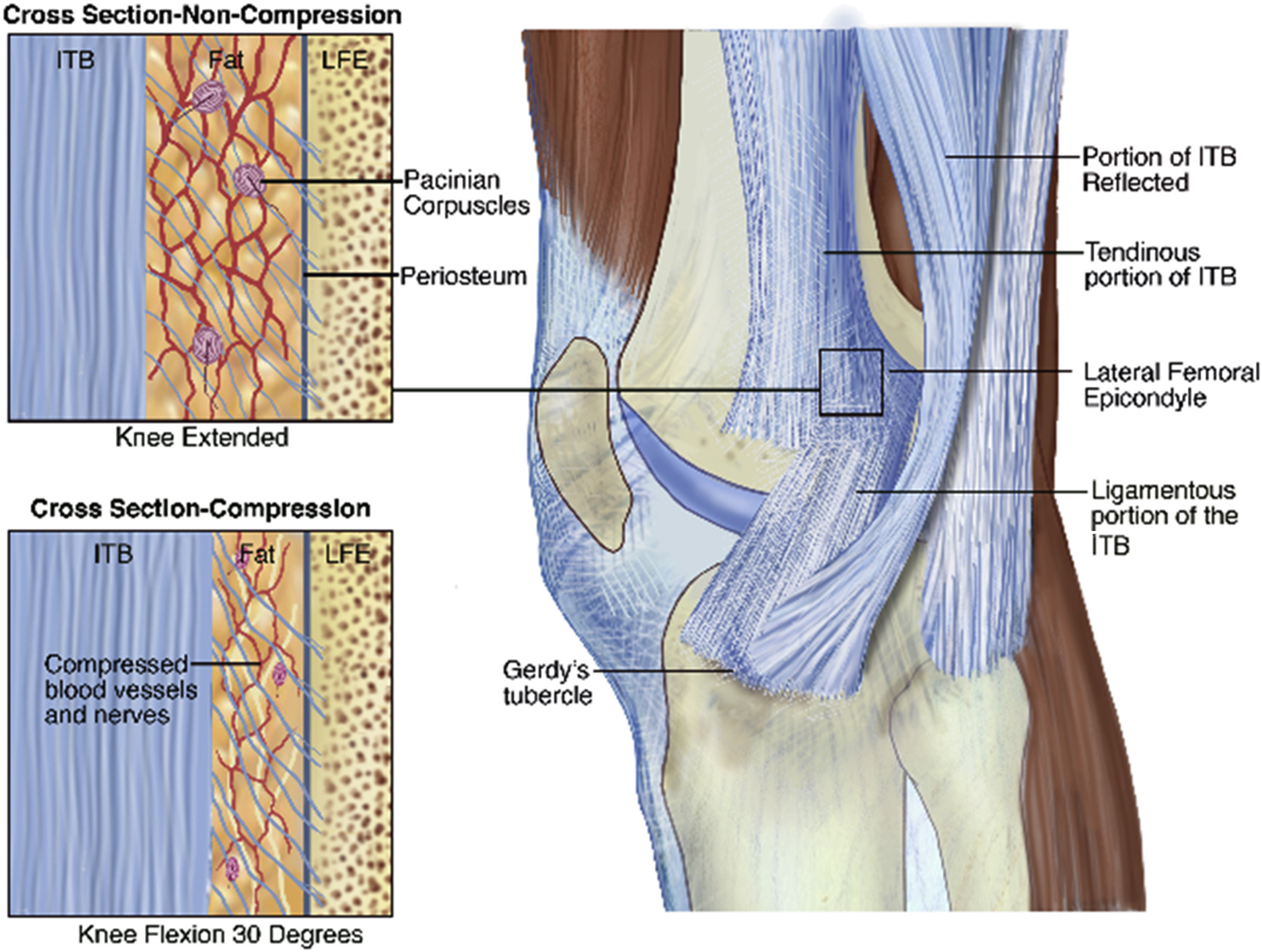 Iliotibial Band Syndrome in Runners - Physical Medicine and ...