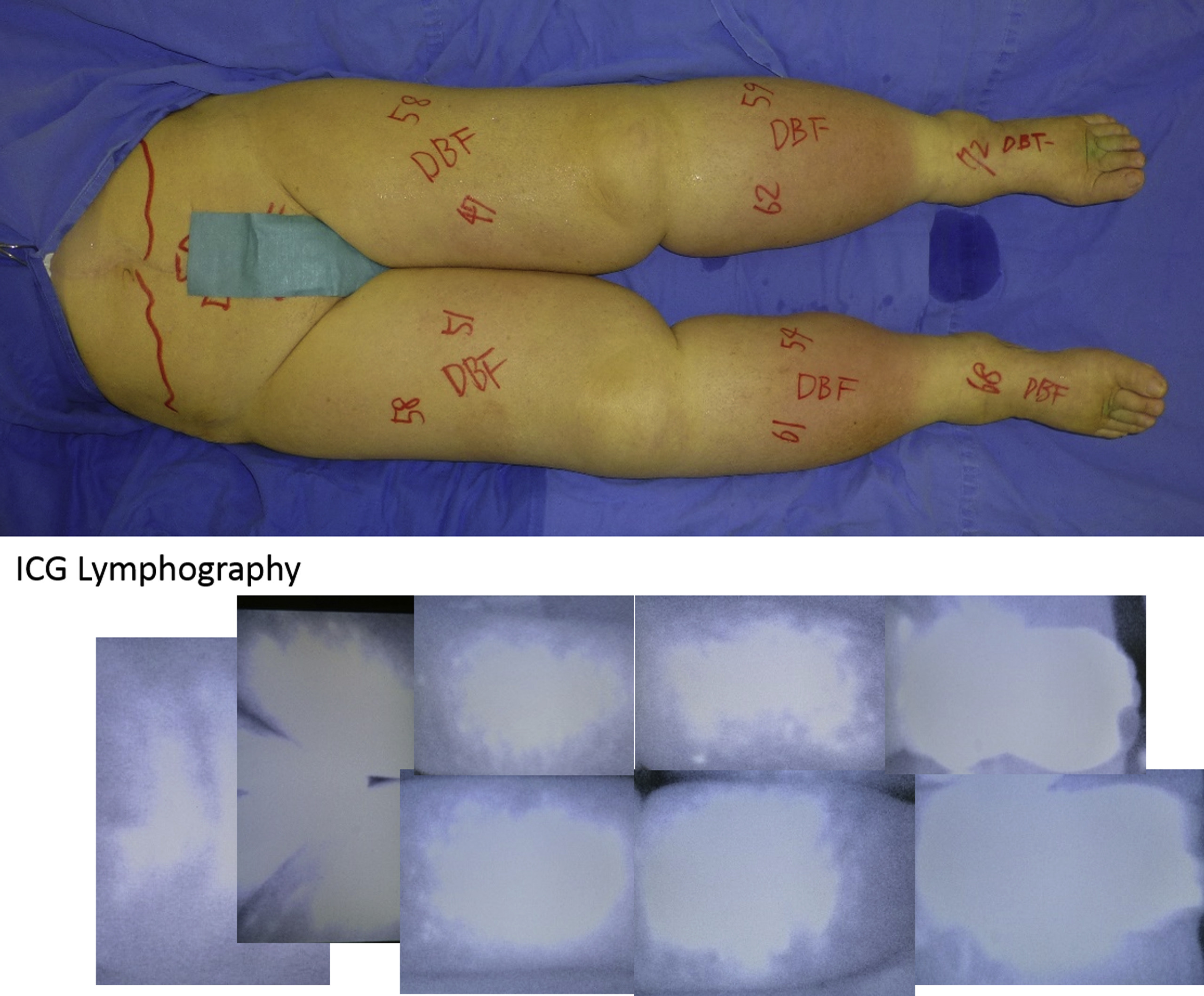 Proximal and distal patterns: Different spreading patterns of ...