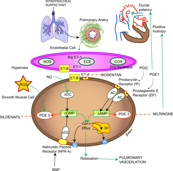 Prostacyclins and persistent pulmonary hypertension