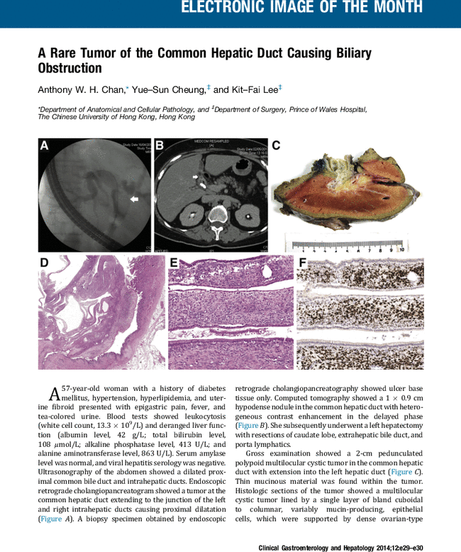 A Rare Tumor Of The Common Hepatic Duct Causing Biliary Obstruction