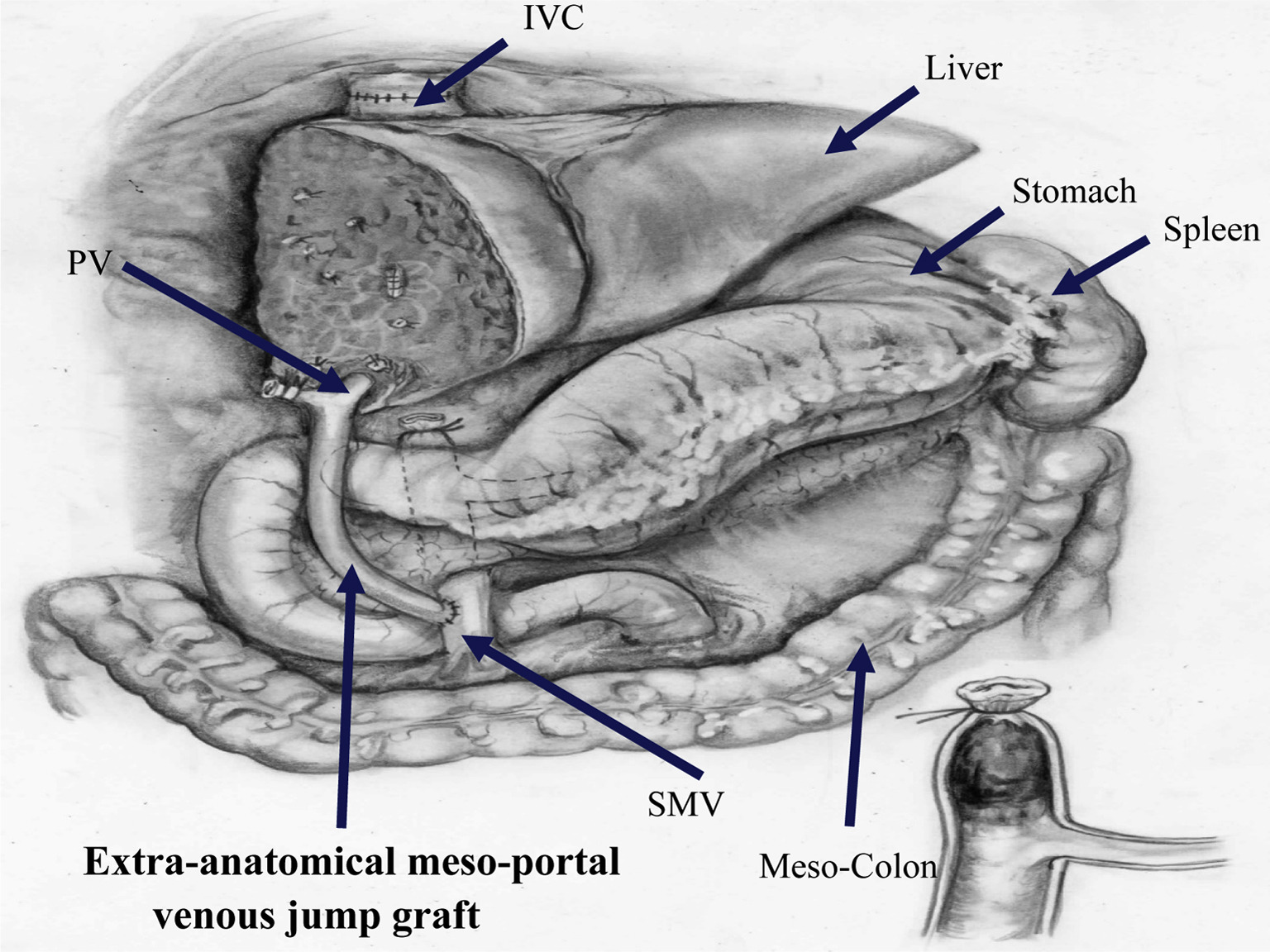 Extra-anatomical Meso-portal Venous Jump Graft Repair for Early ...