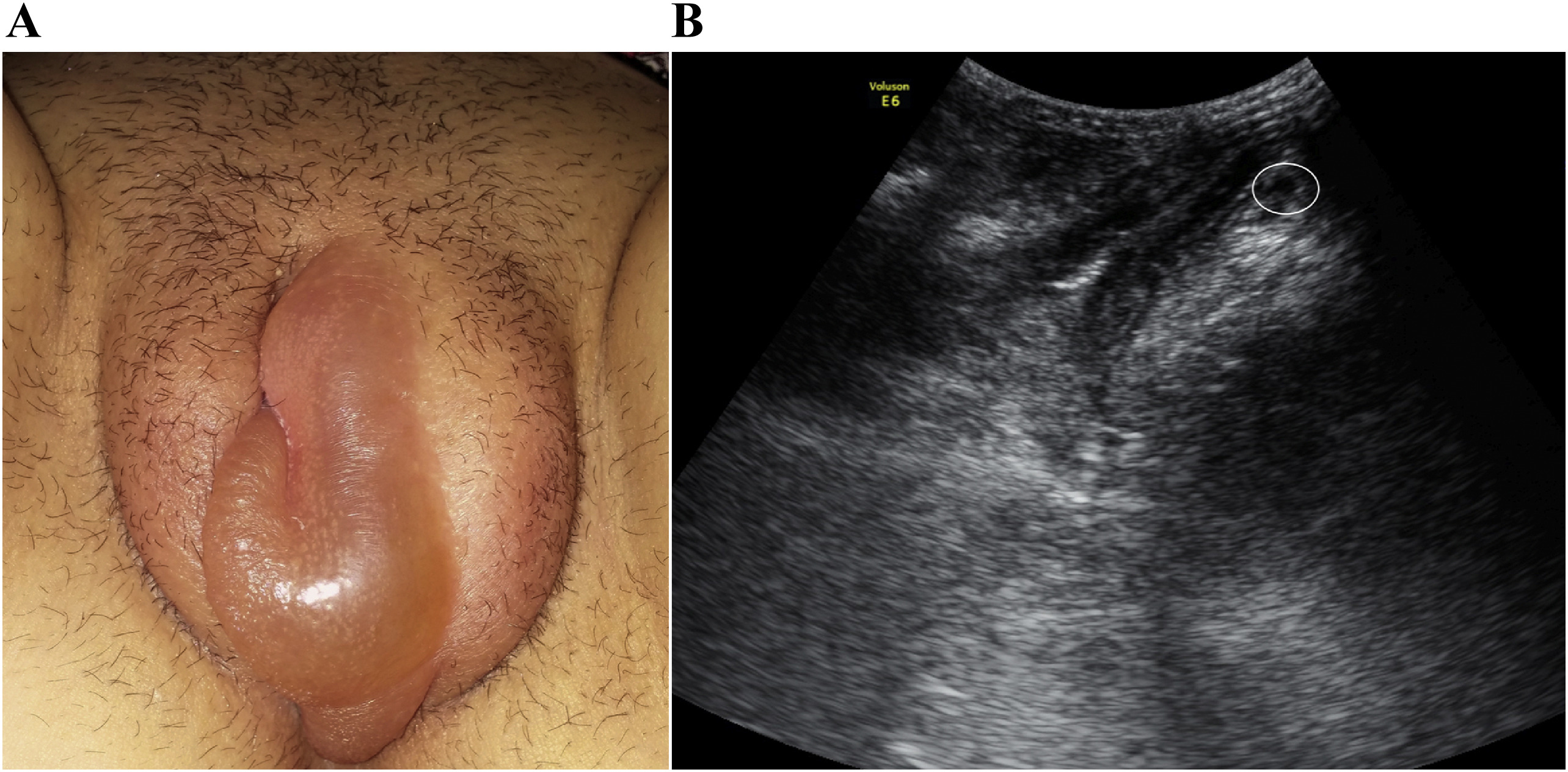swollen labia majora: an unusual presentation of occult inguinal
