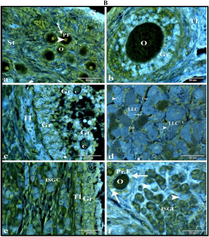 Cell specific immuno localization of progesterone receptor for Mural granulosa cells