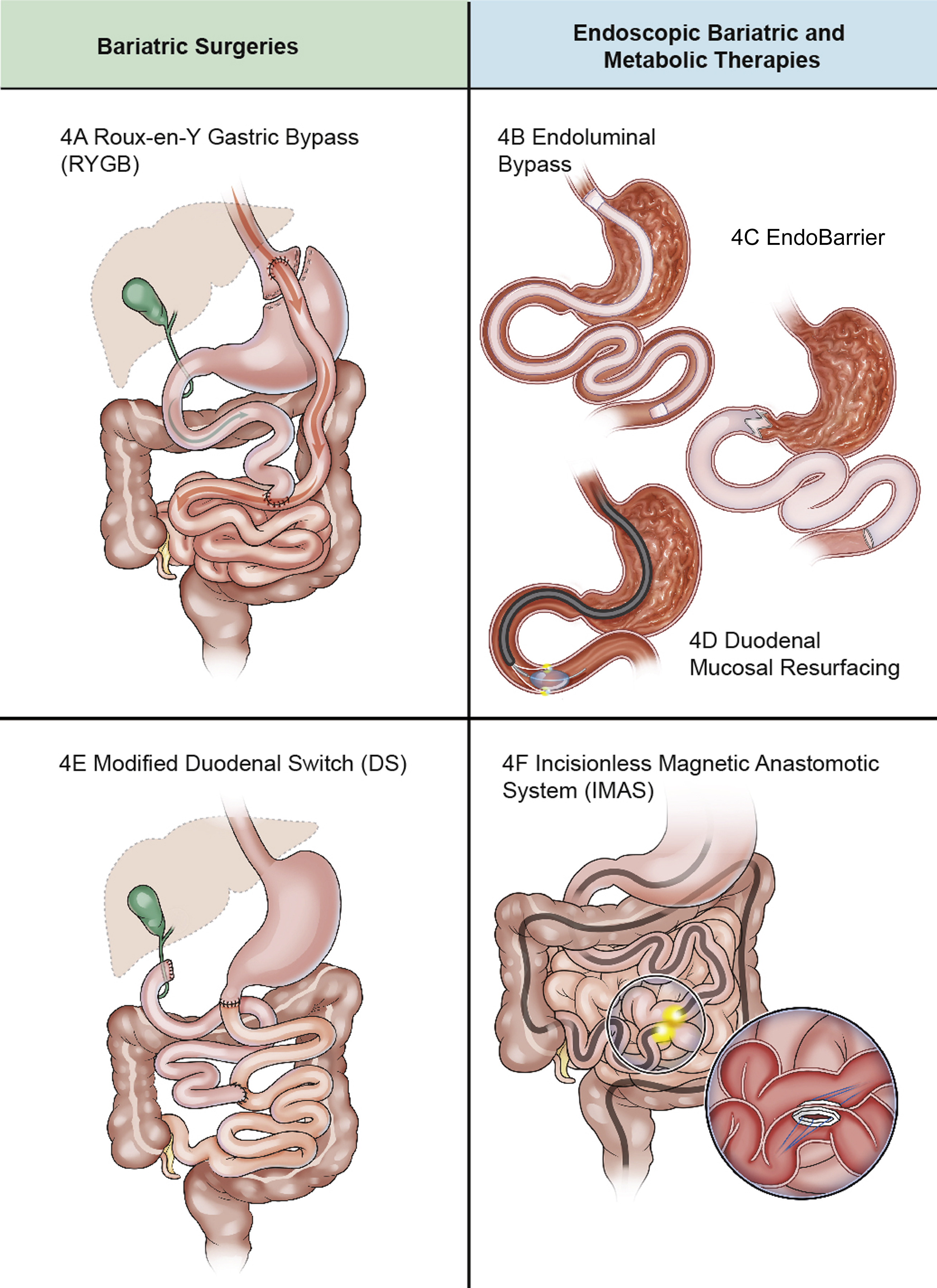 Endoscopic Bariatric And Metabolic Therapies Surgical Analogues And