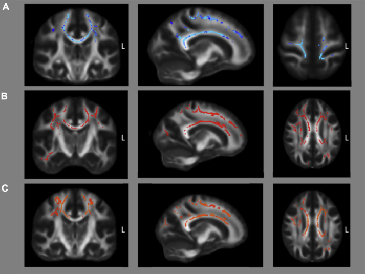 Widespread White Matter And Conduction Defects In Psen1 Related