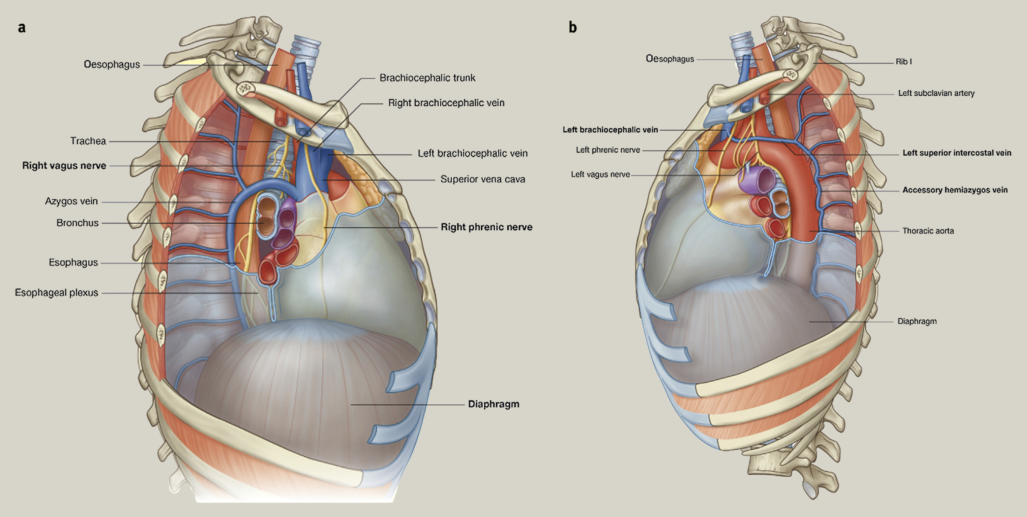 Principles of posterolateral thoracotomy and pneumonectomy - Surgery ...