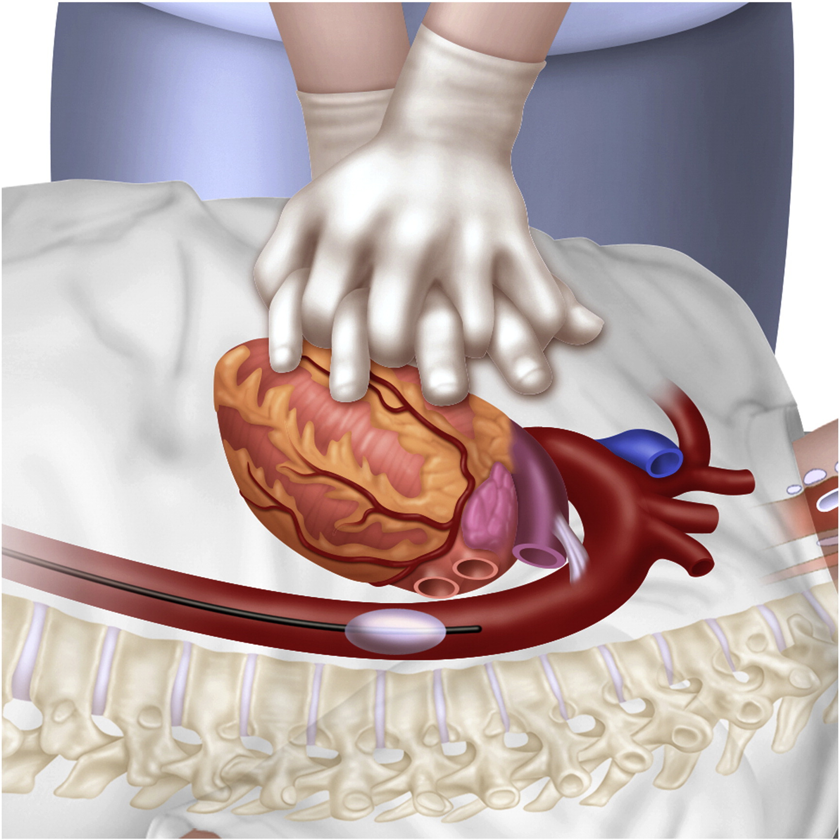 The role of resuscitative endovascular balloon occlusion of the ...