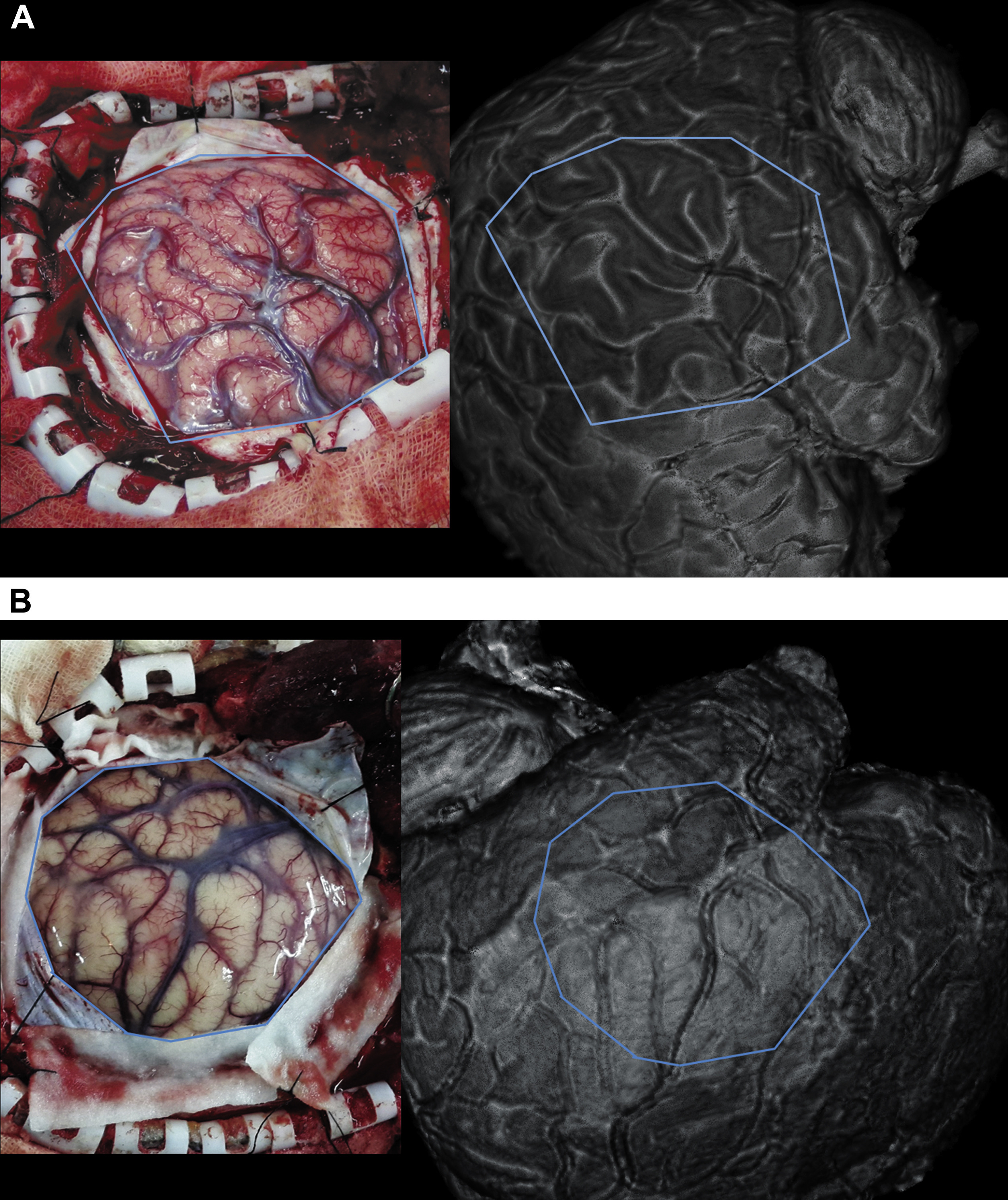 Three-Dimensional Cortical Surface Reconstruction Versus Operative ...