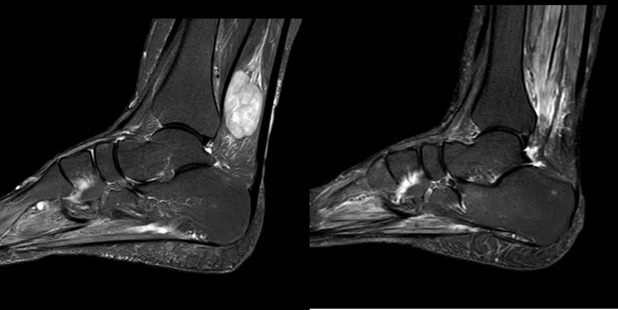 Posterior Tibial Nerve Lymphoma Presenting as Tarsal Tunnel Syndrome ...