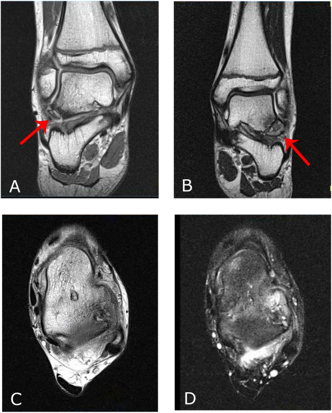 A rare cause of lateral ankle pain: A symptomatic talus secundarius ...