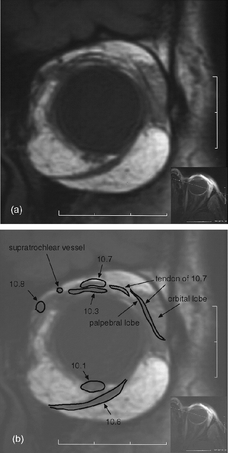 Anatomy of the visual system - European Journal of Radiology